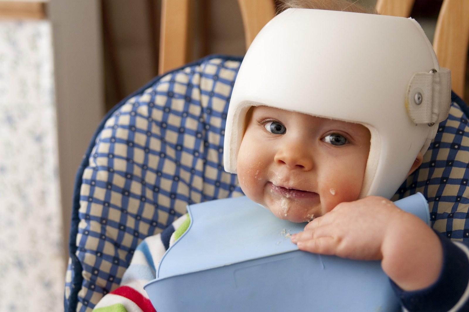 pics Flat Skull Spot in Most Babies