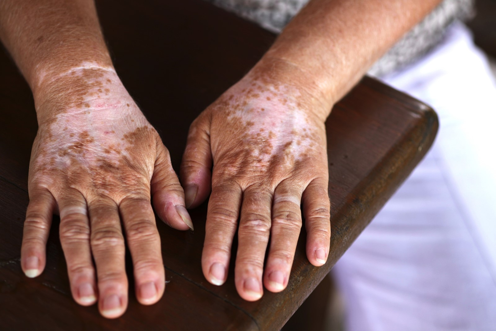 Drug plus UV-B light may reverse vitiligo - West